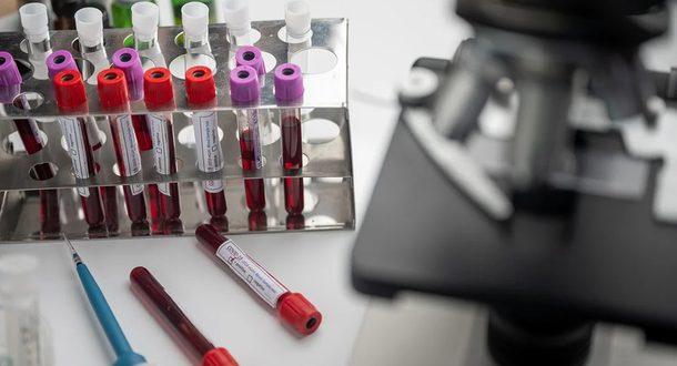 Украина заявила о разработке собственной вакцины от коронавируса